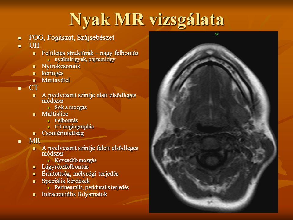 Nyak MR vizsgálata FOG, Fogászat, Szájsebészet FOG, Fogászat, Szájsebészet UH UH Felületes struktúrák – nagy felbontás Felületes struktúrák – nagy felbontás nyálmirigyek, pajzsmirigy nyálmirigyek, pajzsmirigy Nyirokcsomók Nyirokcsomók keringés keringés Mintavétel Mintavétel CT CT A nyelvcsont szintje alatt elsődleges módszer A nyelvcsont szintje alatt elsődleges módszer Sok a mozgás Sok a mozgás Multislice Multislice Felbontás Felbontás CT angiographia CT angiographia Csontérintettség Csontérintettség MR MR A nyelvcsont szintje felett elsődleges módszer A nyelvcsont szintje felett elsődleges módszer Kevesebb mozgás Kevesebb mozgás Lágyrészfelbontás Lágyrészfelbontás Érintettség, mélységi terjedés Érintettség, mélységi terjedés Speciális kérdések Speciális kérdések Perineuralis, periduralis terjedés Perineuralis, periduralis terjedés Intracraniális folyamatok Intracraniális folyamatok