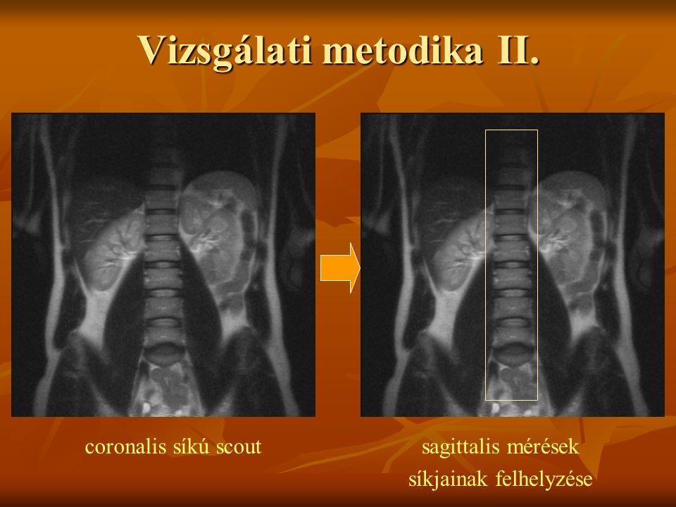 coronalis síkú scoutsagittalis mérések síkjainak felhelyzése Vizsgálati metodika II.
