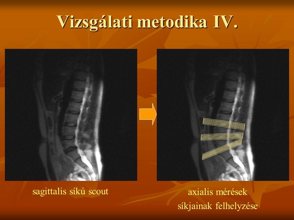 sagittalis síkú scout axialis mérések síkjainak felhelyzése Vizsgálati metodika IV.