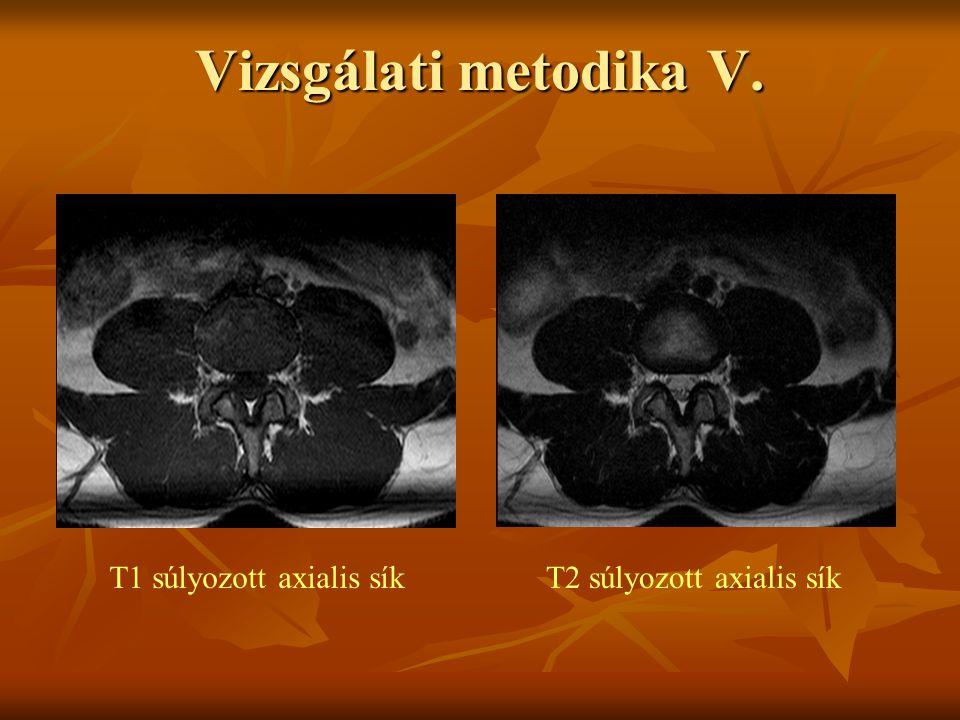 T1 súlyozott axialis síkT2 súlyozott axialis sík Vizsgálati metodika V.