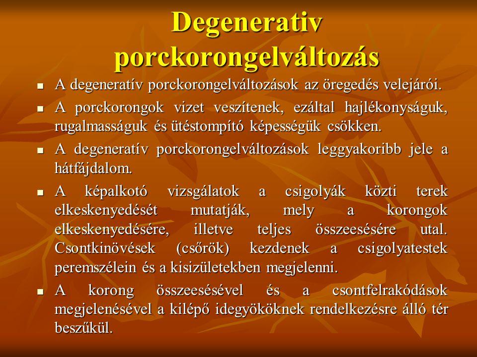 Degenerativ porckorongelváltozás A degeneratív porckorongelváltozások az öregedés velejárói.