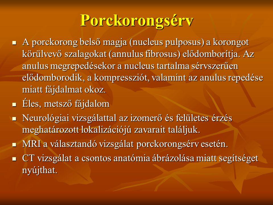 Porckorongsérv A porckorong belső magja (nucleus pulposus) a korongot körülvevő szalagokat (annulus fibrosus) elődomborítja.