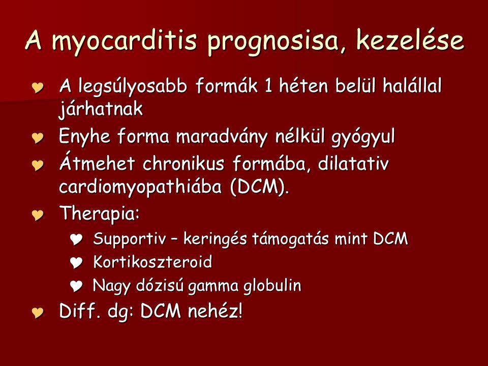 A myocarditis prognosisa, kezelése  A legsúlyosabb formák 1 héten belül halállal járhatnak  Enyhe forma maradvány nélkül gyógyul  Átmehet chronikus