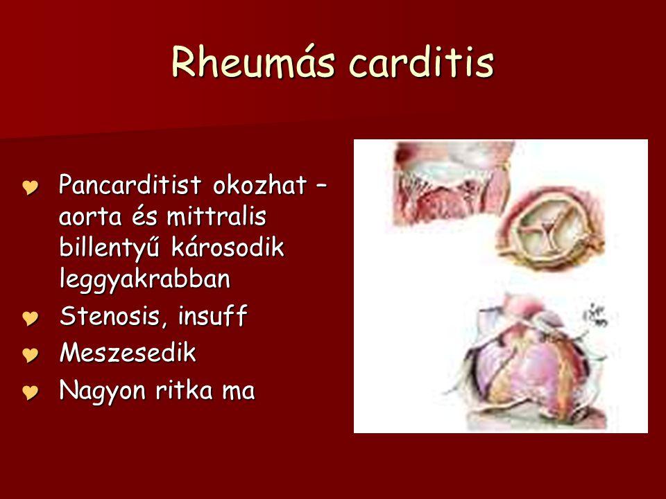 Rheumás carditis  Pancarditist okozhat – aorta és mittralis billentyű károsodik leggyakrabban  Stenosis, insuff  Meszesedik  Nagyon ritka ma