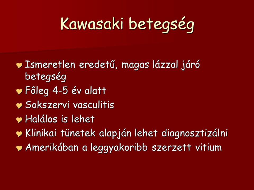 Kawasaki betegség  Ismeretlen eredetű, magas lázzal járó betegség  Főleg 4-5 év alatt  Sokszervi vasculitis  Halálos is lehet  Klinikai tünetek a
