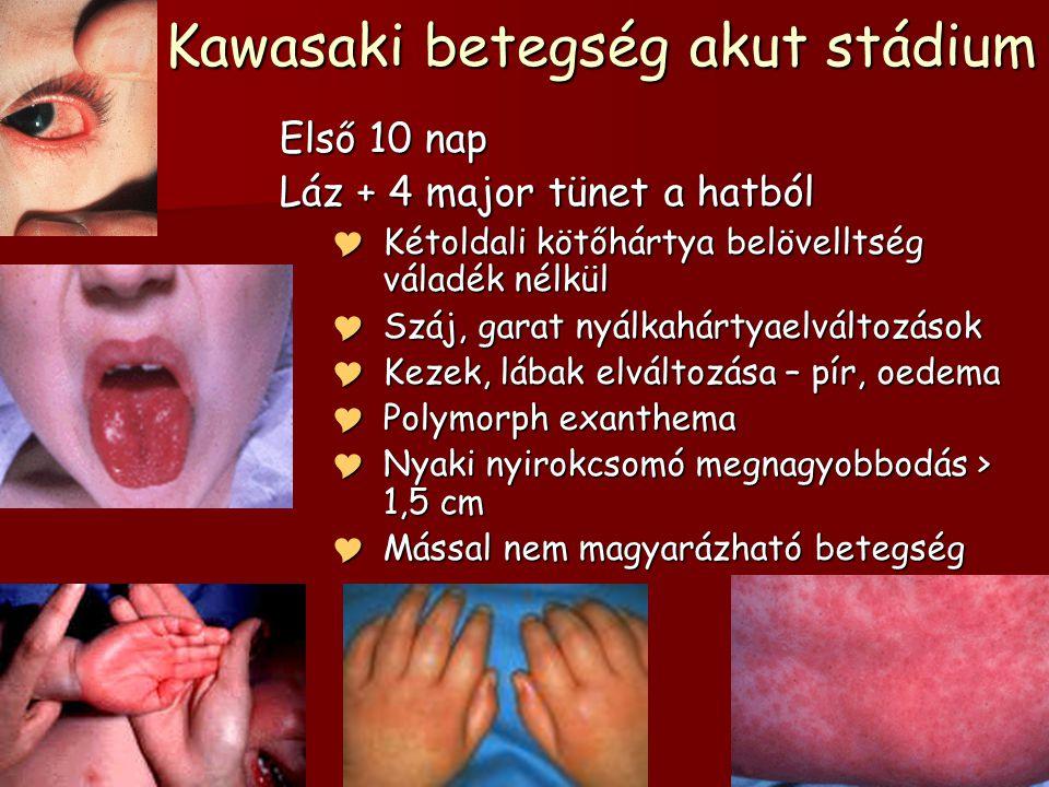 Kawasaki betegség akut stádium Első 10 nap Láz + 4 major tünet a hatból  Kétoldali kötőhártya belövelltség váladék nélkül  Száj, garat nyálkahártyae