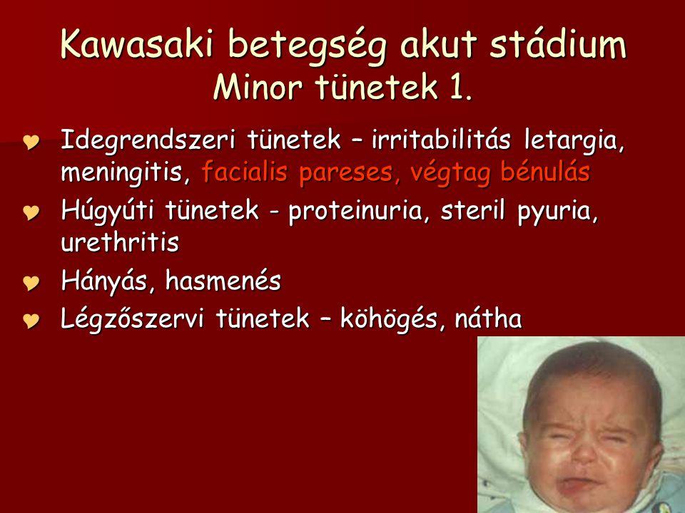Kawasaki betegség akut stádium Minor tünetek 1.  Idegrendszeri tünetek – irritabilitás letargia, meningitis, facialis pareses, végtag bénulás  Húgyú