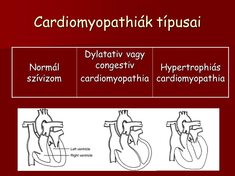 Cardiomyopathiák típusai Normál szívizom Dylatativ vagy congestiv cardiomyopathia Hypertrophiás cardiomyopathia