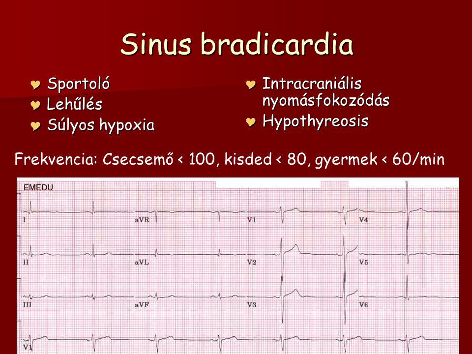 Sinus bradicardia  Sportoló  Lehűlés  Súlyos hypoxia  Intracraniális nyomásfokozódás  Hypothyreosis Frekvencia: Csecsemő < 100, kisded < 80, gyer