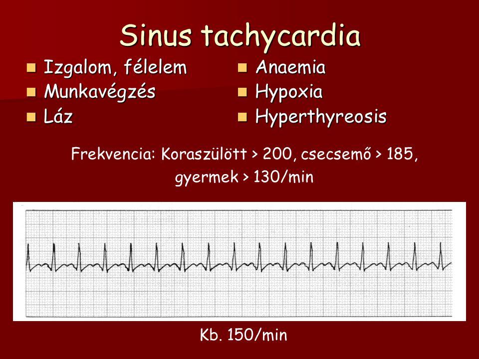 Sinus tachycardia Izgalom, félelem Izgalom, félelem Munkavégzés Munkavégzés Láz Láz Anaemia Anaemia Hypoxia Hypoxia Hyperthyreosis Hyperthyreosis Kb.