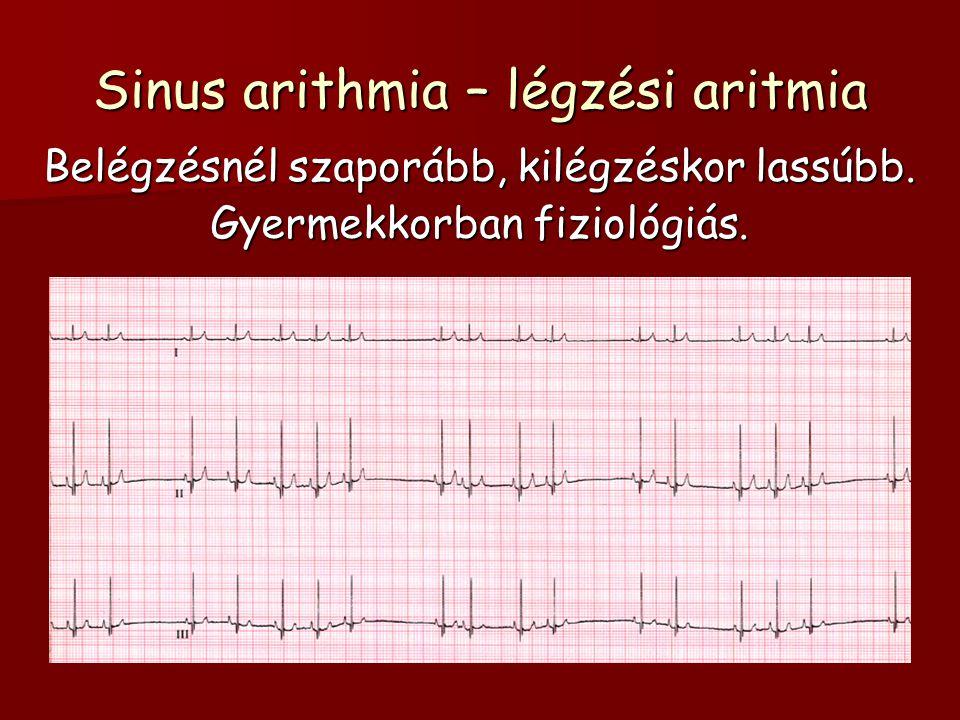 Sinus arithmia – légzési aritmia Belégzésnél szaporább, kilégzéskor lassúbb. Gyermekkorban fiziológiás.