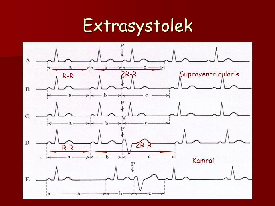 Extrasystolek R-R 2R-R R-R 2R-R Kamrai Supraventricularis
