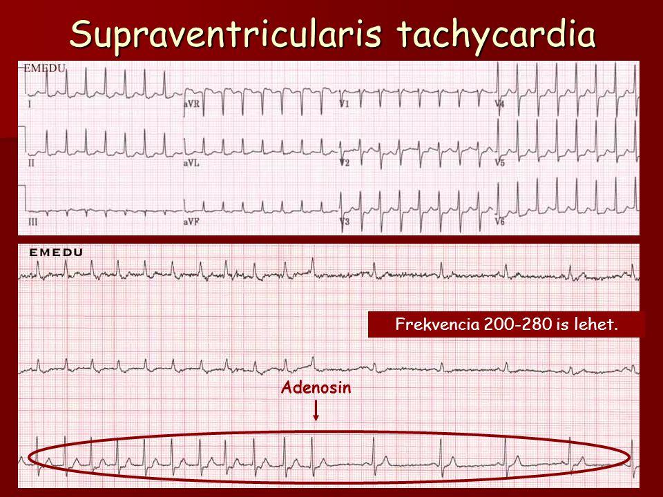 Supraventricularis tachycardia Adenosin Frekvencia 200-280 is lehet.