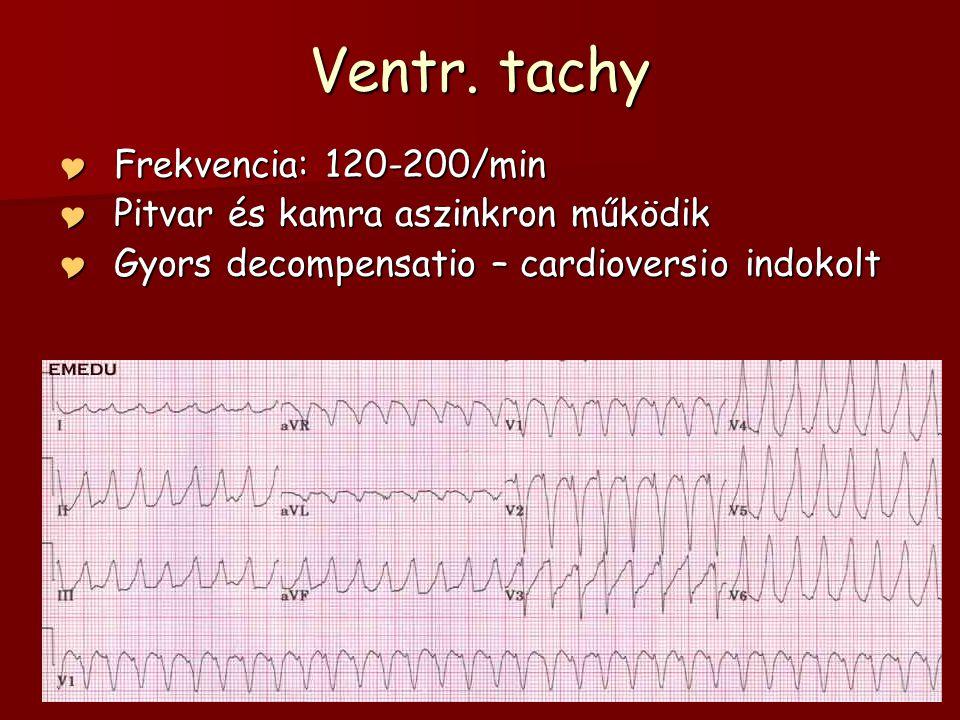 Ventr. tachy  Frekvencia: 120-200/min  Pitvar és kamra aszinkron működik  Gyors decompensatio – cardioversio indokolt