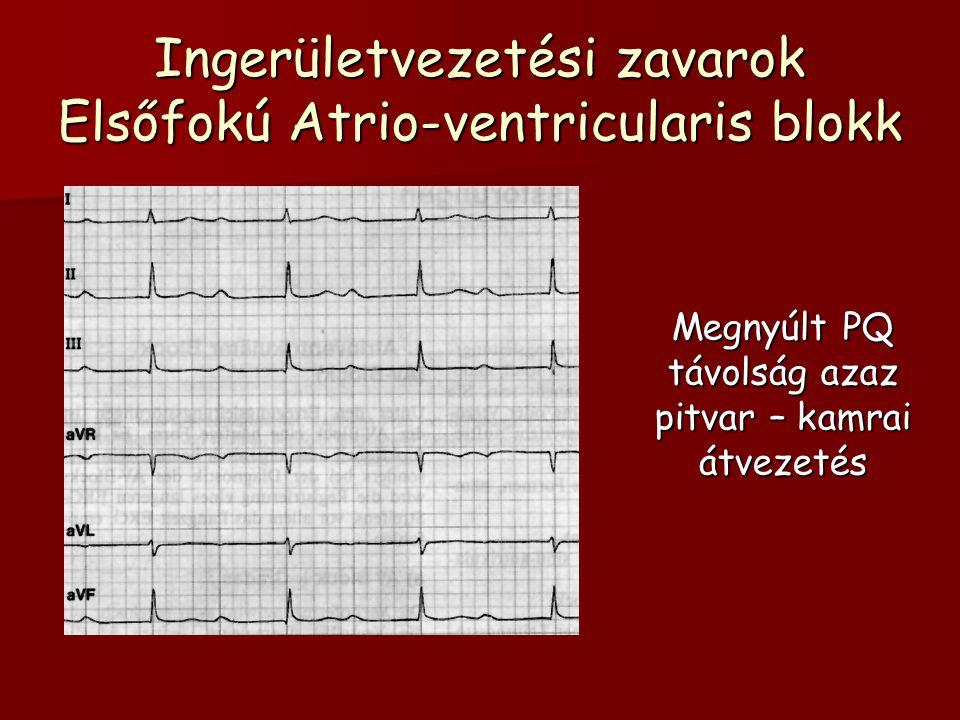 Ingerületvezetési zavarok Elsőfokú Atrio-ventricularis blokk Megnyúlt PQ távolság azaz pitvar – kamrai átvezetés