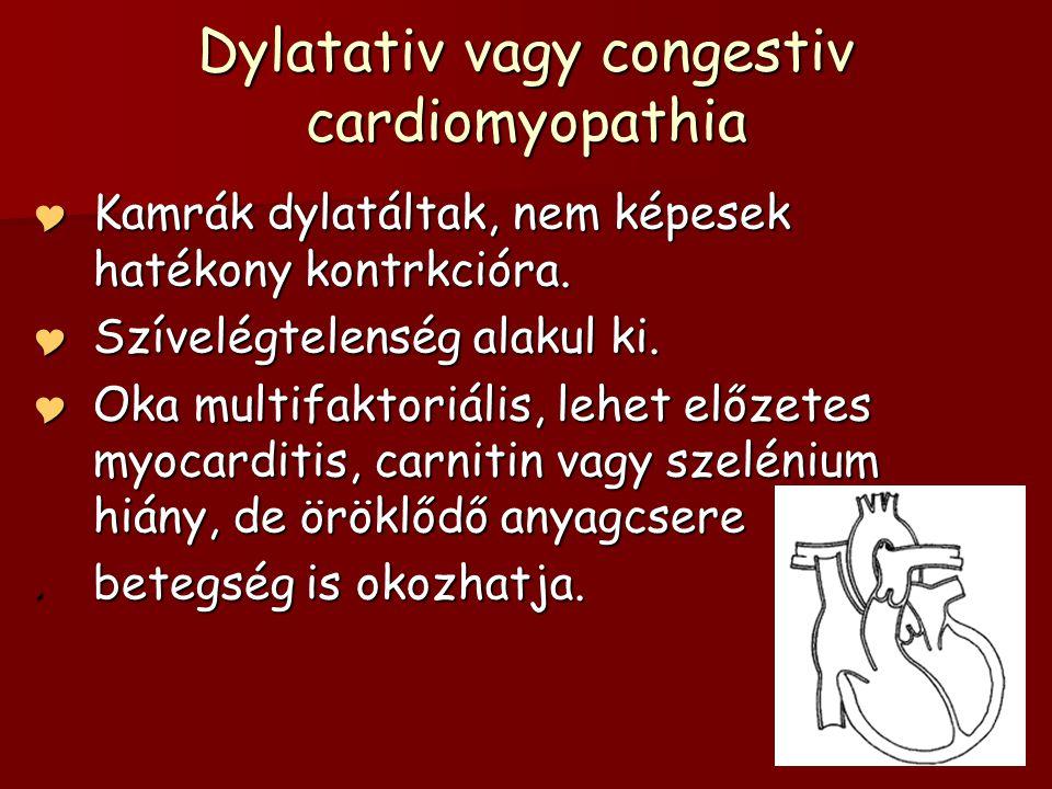 Dylatativ vagy congestiv cardiomyopathia  Kamrák dylatáltak, nem képesek hatékony kontrkcióra.  Szívelégtelenség alakul ki.  Oka multifaktoriális,