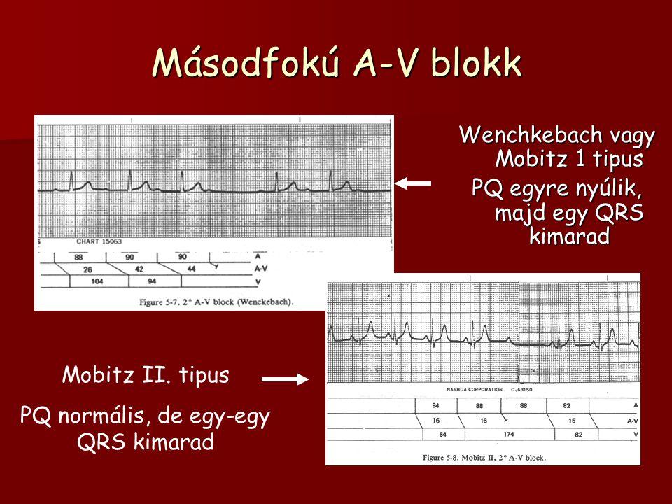 Másodfokú A-V blokk Wenchkebach vagy Mobitz 1 tipus PQ egyre nyúlik, majd egy QRS kimarad Mobitz II. tipus PQ normális, de egy-egy QRS kimarad