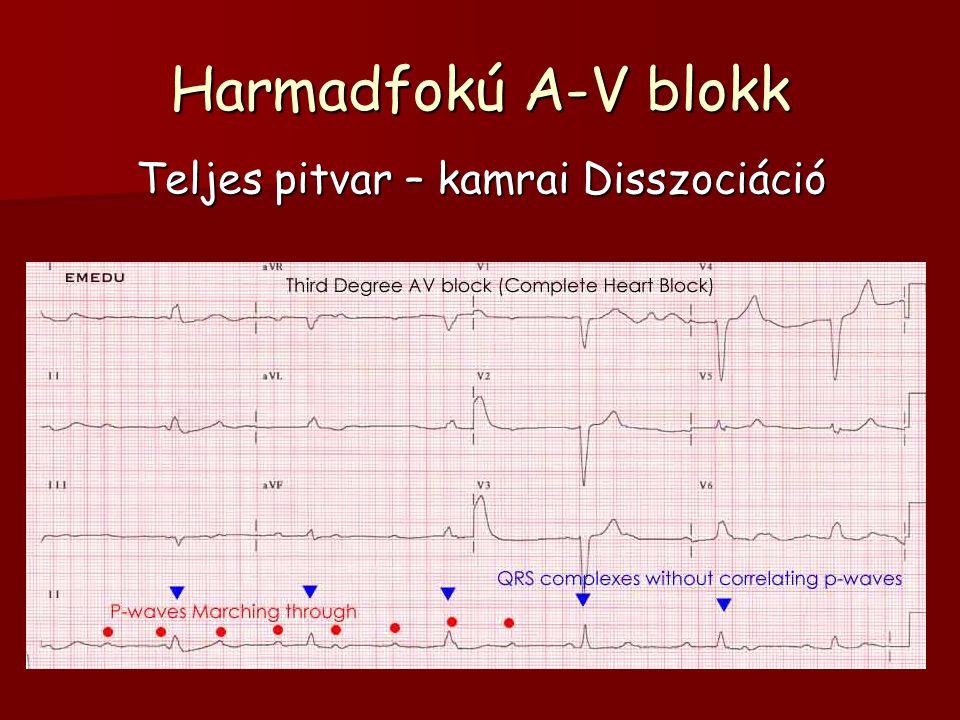 Harmadfokú A-V blokk Teljes pitvar – kamrai Disszociáció