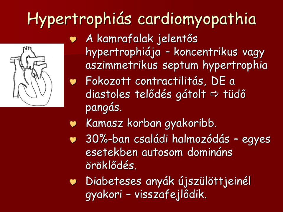 Hypertrophiás cardiomyopathia  A kamrafalak jelentős hypertrophiája – koncentrikus vagy aszimmetrikus septum hypertrophia  Fokozott contractilitás,