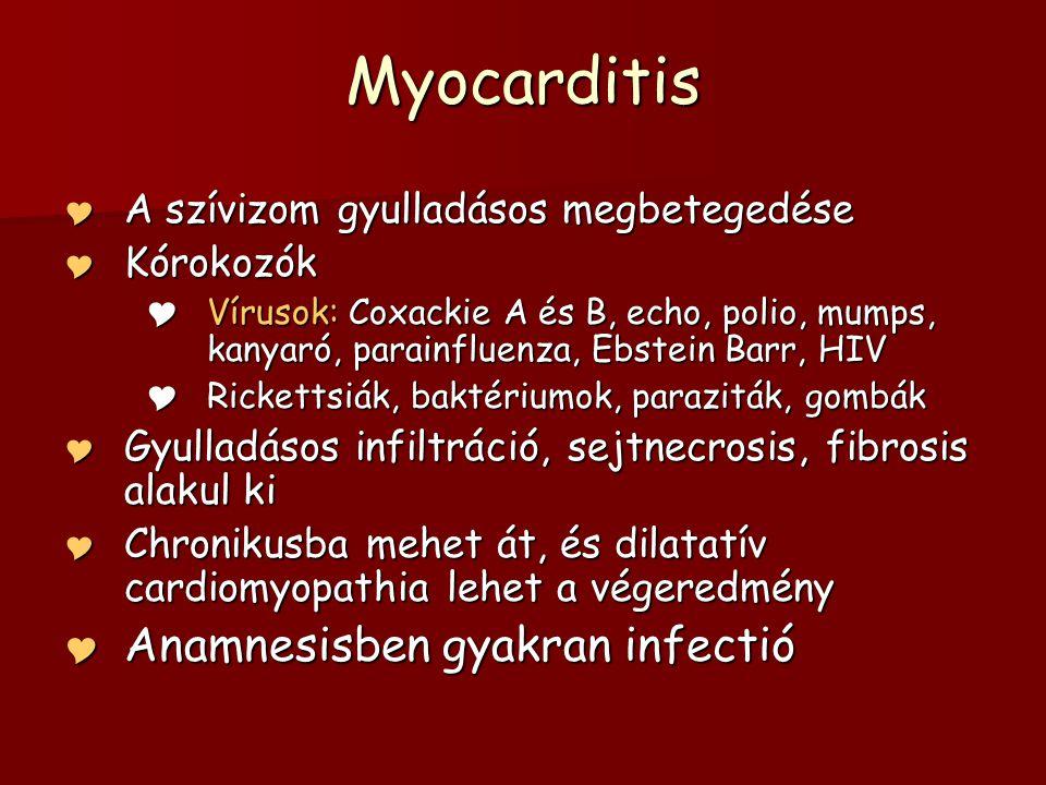 Myocarditis  A szívizom gyulladásos megbetegedése  Kórokozók  Vírusok: Coxackie A és B, echo, polio, mumps, kanyaró, parainfluenza, Ebstein Barr, H