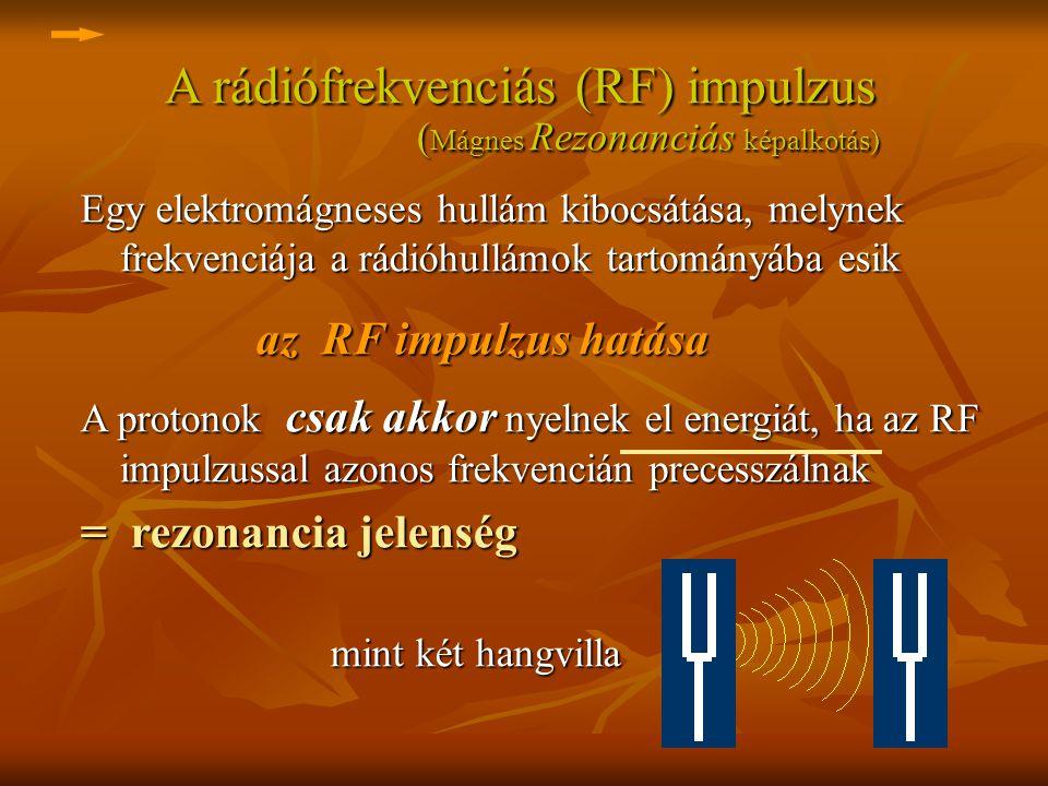 A rádiófrekvenciás (RF) impulzus ( Mágnes Rezonanciás képalkotás) A rádiófrekvenciás (RF) impulzus ( Mágnes Rezonanciás képalkotás) Egy elektromágnese