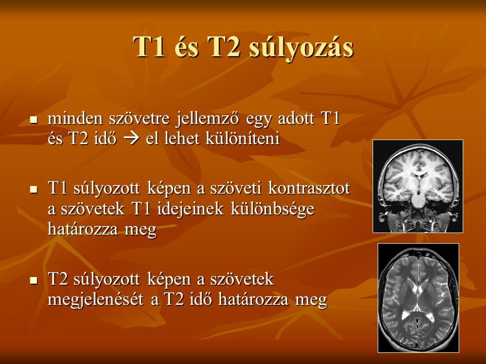 T1 és T2 súlyozás minden szövetre jellemző egy adott T1 és T2 idő  el lehet különíteni minden szövetre jellemző egy adott T1 és T2 idő  el lehet kül
