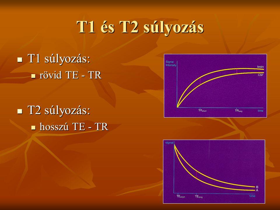 T1 és T2 súlyozás T1 súlyozás: T1 súlyozás: rövid TE - TR rövid TE - TR T2 súlyozás: T2 súlyozás: hosszú TE - TR hosszú TE - TR