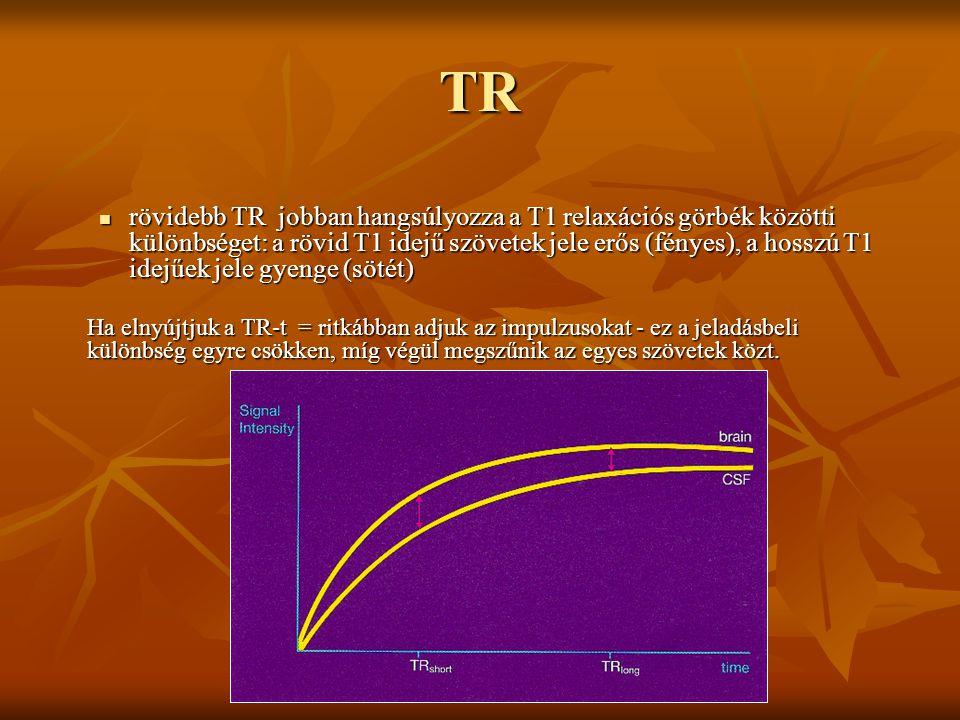 TR rövidebb TR jobban hangsúlyozza a T1 relaxációs görbék közötti különbséget: a rövid T1 idejű szövetek jele erős (fényes), a hosszú T1 idejűek jele