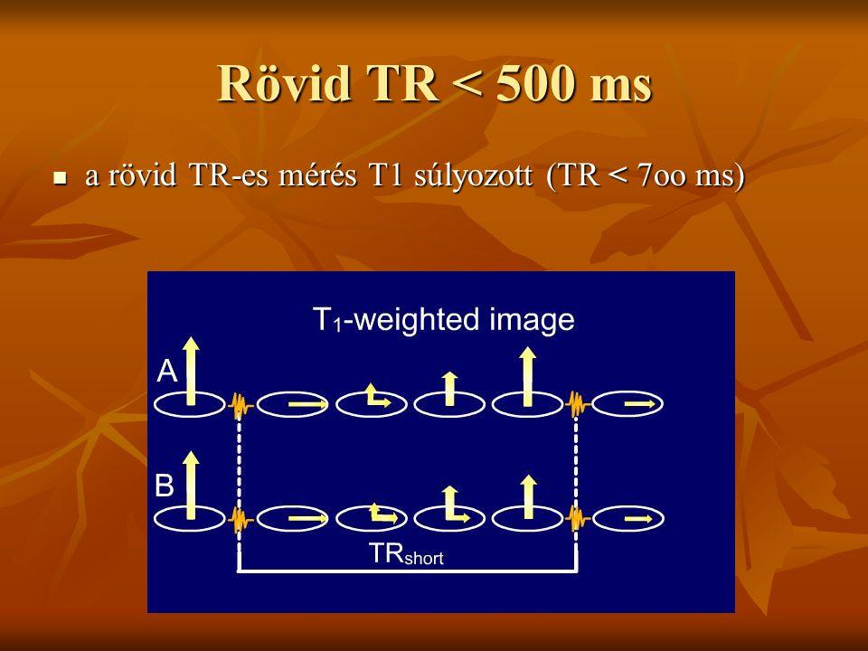Rövid TR < 500 ms a rövid TR-es mérés T1 súlyozott (TR < 7oo ms) a rövid TR-es mérés T1 súlyozott (TR < 7oo ms)