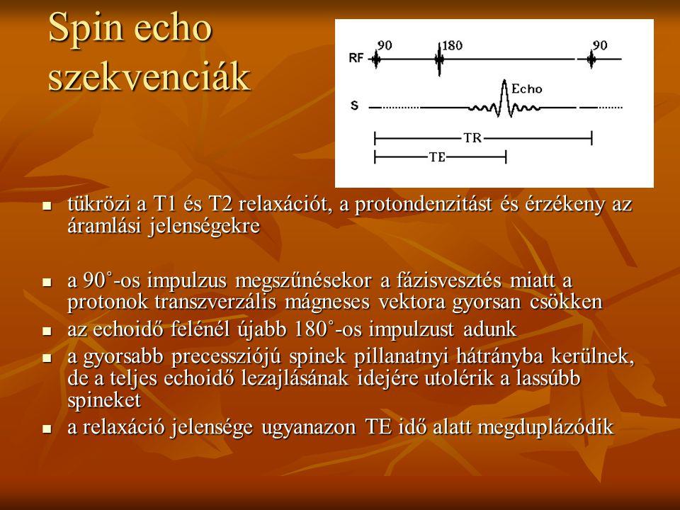 tükrözi a T1 és T2 relaxációt, a protondenzitást és érzékeny az áramlási jelenségekre tükrözi a T1 és T2 relaxációt, a protondenzitást és érzékeny az