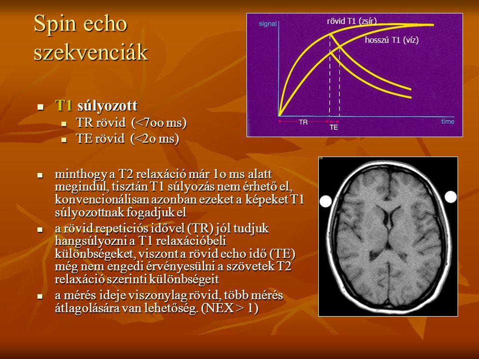 T1 súlyozott T1 súlyozott TR rövid (<7oo ms) TR rövid (<7oo ms) TE rövid (<2o ms) TE rövid (<2o ms) minthogy a T2 relaxáció már 1o ms alatt megindul,