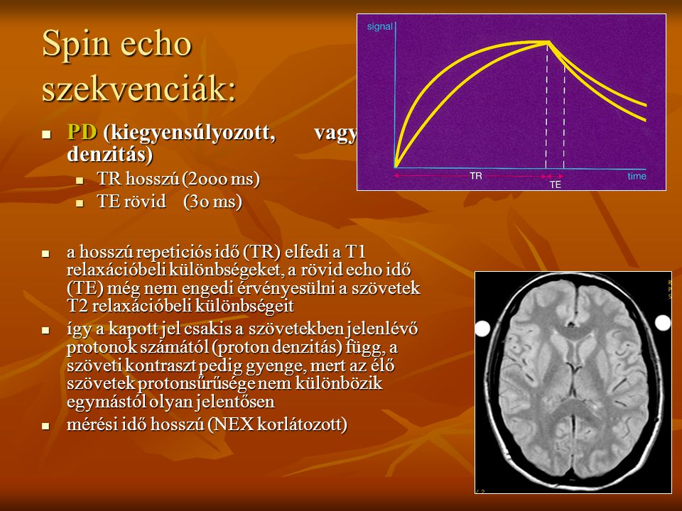 Spin echo szekvenciák: PD (kiegyensúlyozott, vagy proton denzitás) PD (kiegyensúlyozott, vagy proton denzitás) TR hosszú (2ooo ms) TR hosszú (2ooo ms)