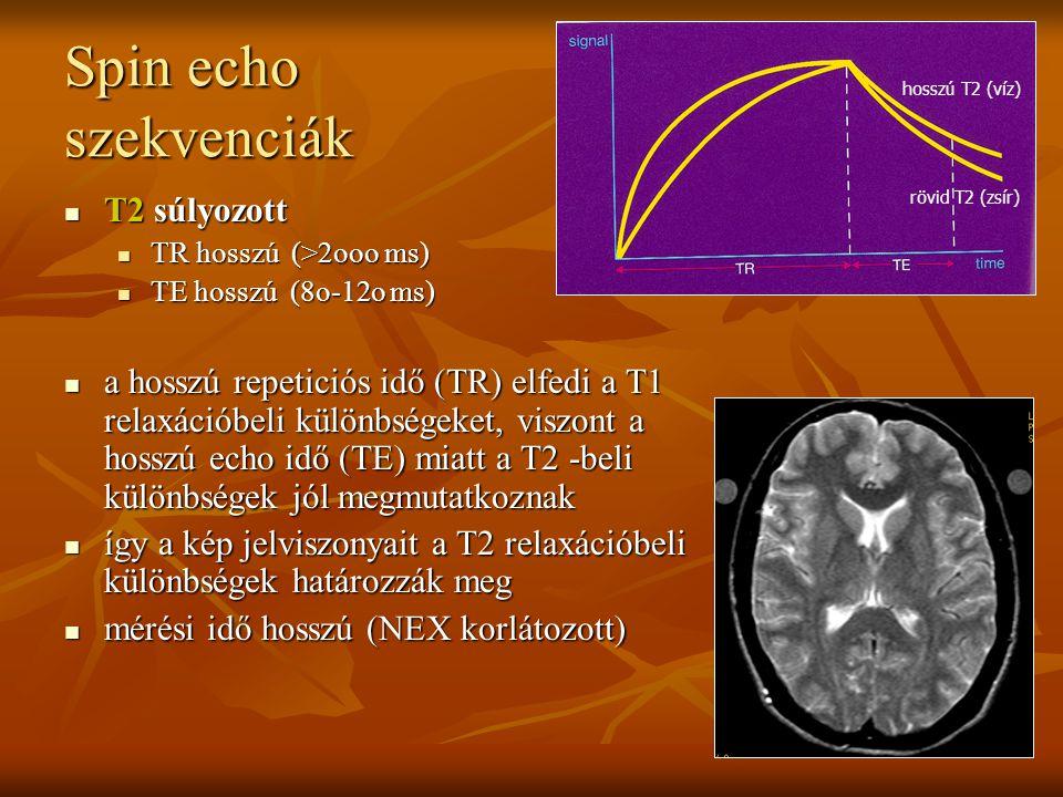Spin echo szekvenciák T2 súlyozott T2 súlyozott TR hosszú (>2ooo ms) TR hosszú (>2ooo ms) TE hosszú (8o-12o ms) TE hosszú (8o-12o ms) a hosszú repetic