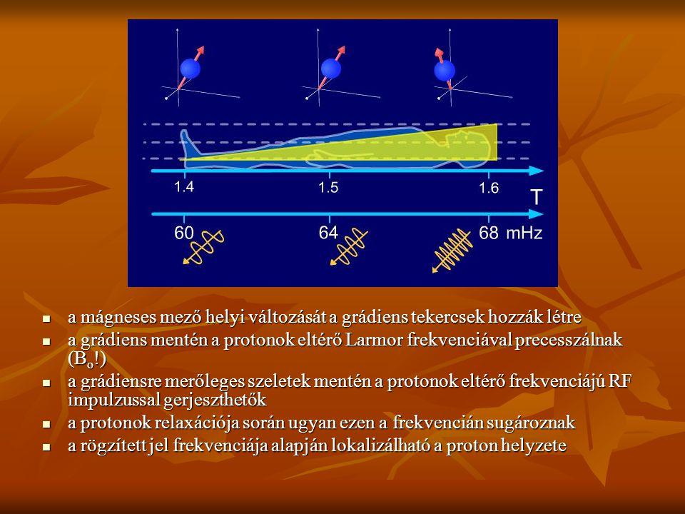 a mágneses mező helyi változását a grádiens tekercsek hozzák létre a mágneses mező helyi változását a grádiens tekercsek hozzák létre a grádiens menté