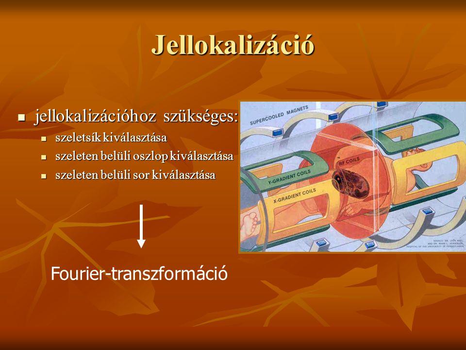 Jellokalizáció Fourier-transzformáció jellokalizációhoz szükséges: jellokalizációhoz szükséges: szeletsík kiválasztása szeletsík kiválasztása szeleten