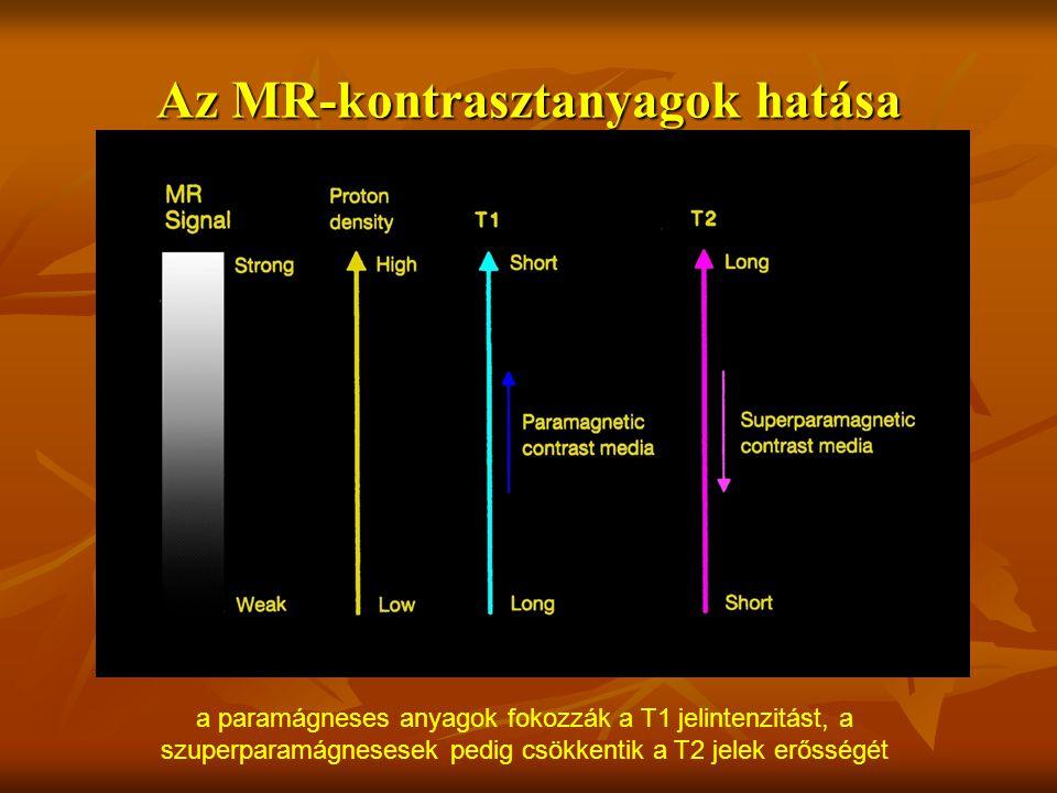 Az MR-kontrasztanyagok hatása a paramágneses anyagok fokozzák a T1 jelintenzitást, a szuperparamágnesesek pedig csökkentik a T2 jelek erősségét