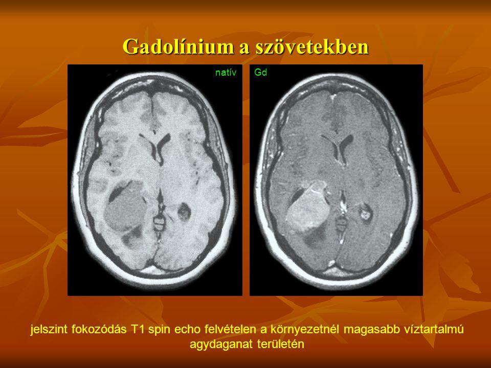 Gadolínium a szövetekben natívGd jelszint fokozódás T1 spin echo felvételen a környezetnél magasabb víztartalmú agydaganat területén
