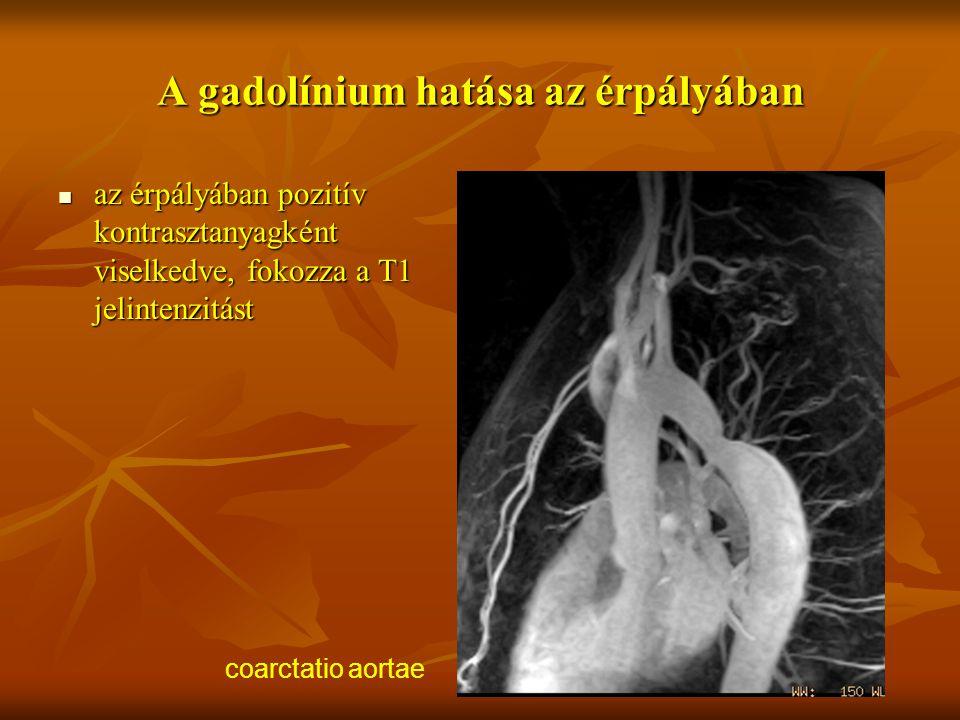 A gadolínium hatása az érpályában az érpályában pozitív kontrasztanyagként viselkedve, fokozza a T1 jelintenzitást az érpályában pozitív kontrasztanya
