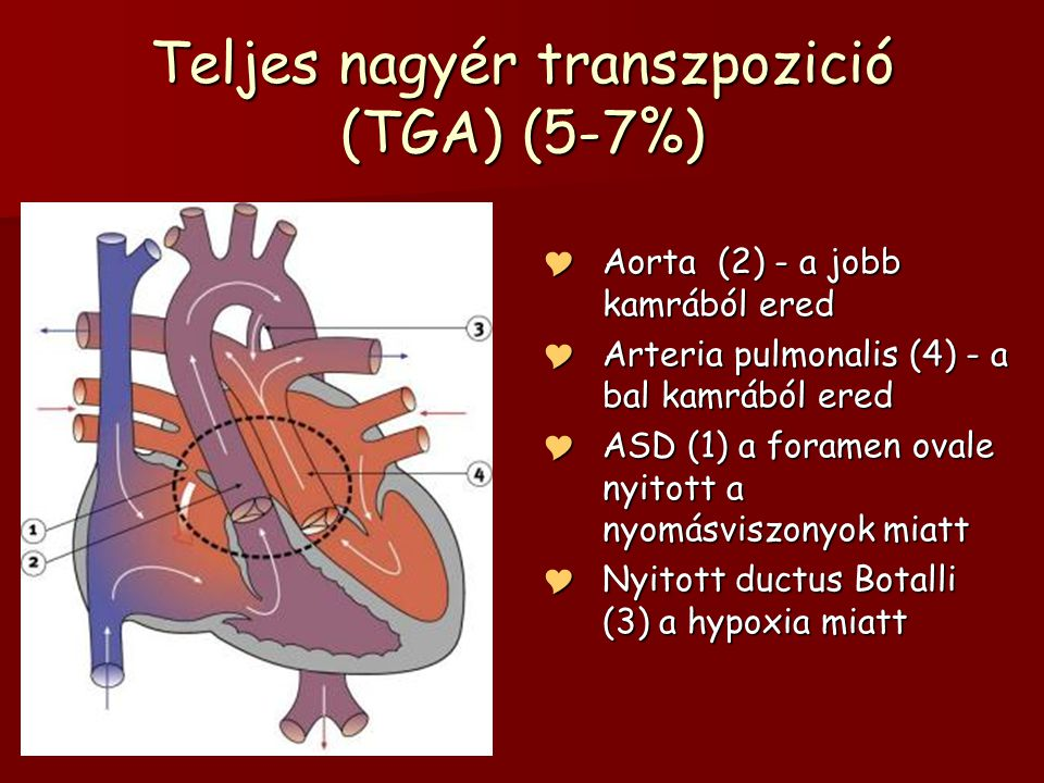 Teljes nagyér transzpozició (TGA) (5-7%)  Aorta (2) - a jobb kamrából ered  Arteria pulmonalis (4) - a bal kamrából ered  ASD (1) a foramen ovale n
