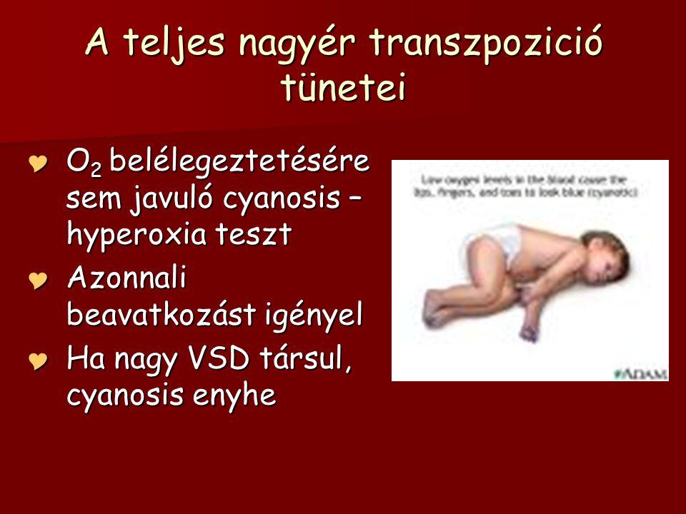 A teljes nagyér transzpozició tünetei  O 2 belélegeztetésére sem javuló cyanosis – hyperoxia teszt  Azonnali beavatkozást igényel  Ha nagy VSD társ