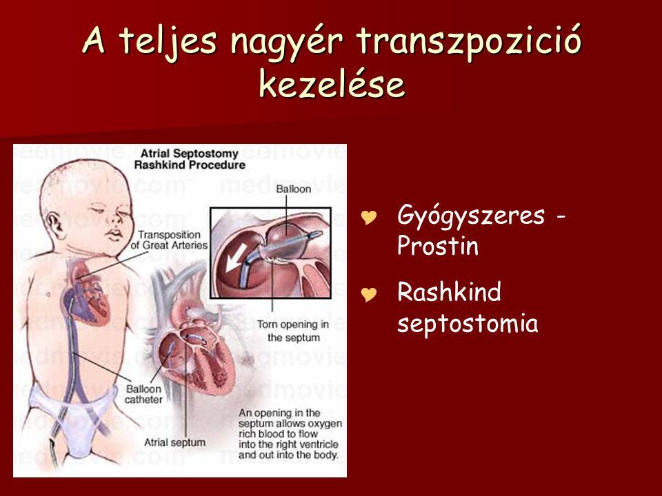 A teljes nagyér transzpozició kezelése  Gyógyszeres - Prostin  Rashkind septostomia