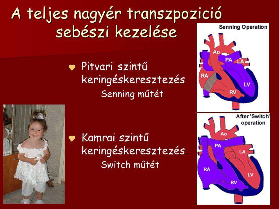 A teljes nagyér transzpozició sebészi kezelése   Pitvari szintű keringéskeresztezés Senning műtét   Kamrai szintű keringéskeresztezés Switch műtét