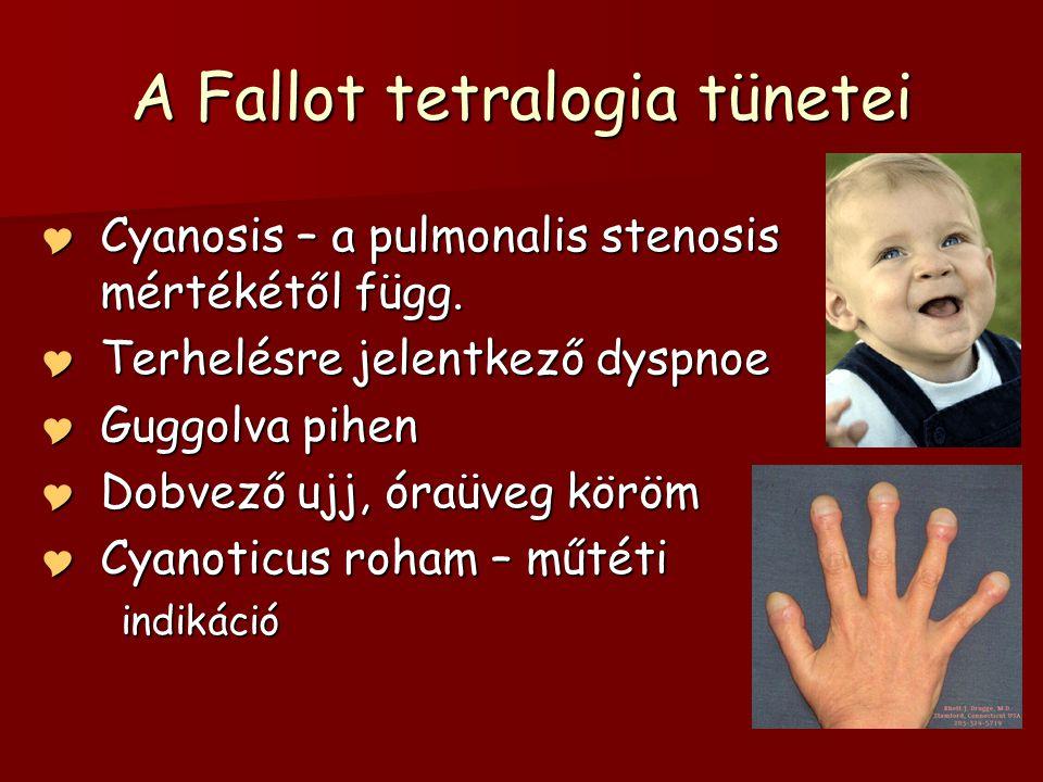 A Fallot tetralogia tünetei  Cyanosis – a pulmonalis stenosis mértékétől függ.  Terhelésre jelentkező dyspnoe  Guggolva pihen  Dobvező ujj, óraüve
