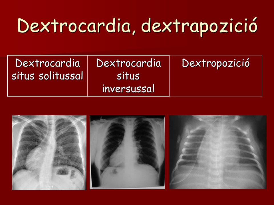 Dextrocardia, dextrapozició Dextrocardia situs solitussal Dextrocardia situs inversussal Dextropozició
