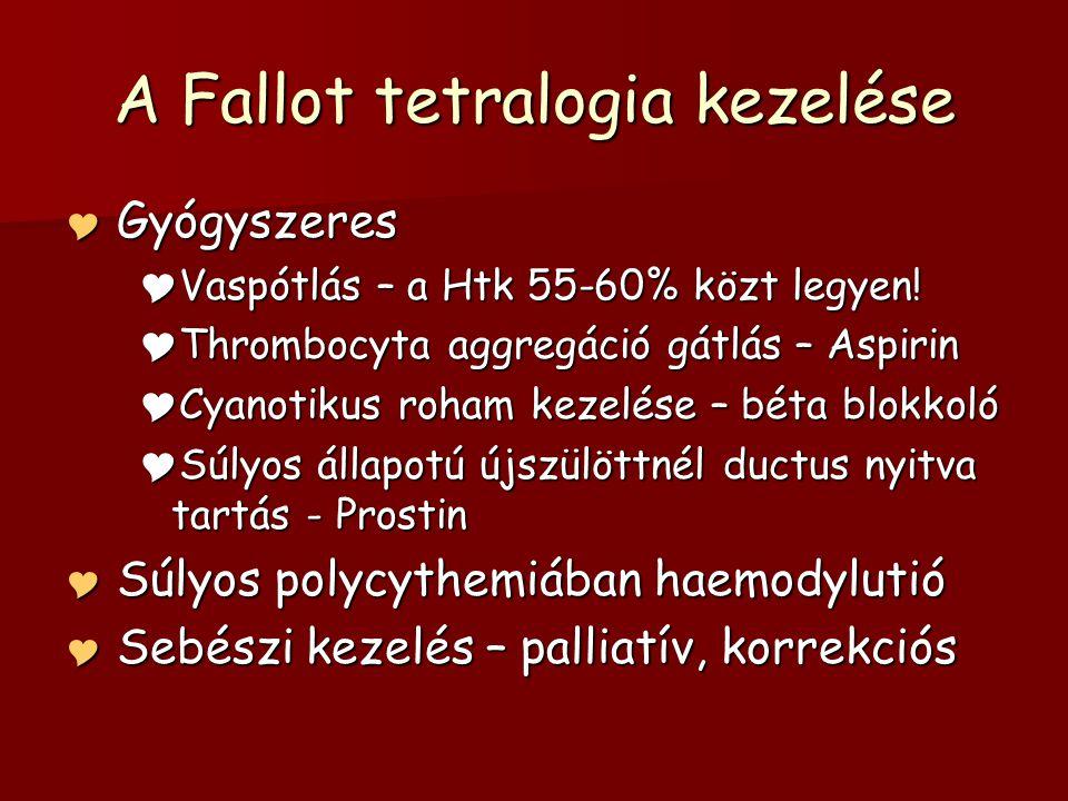 A Fallot tetralogia kezelése  Gyógyszeres  Vaspótlás – a Htk 55-60% közt legyen!  Thrombocyta aggregáció gátlás – Aspirin  Cyanotikus roham kezelé