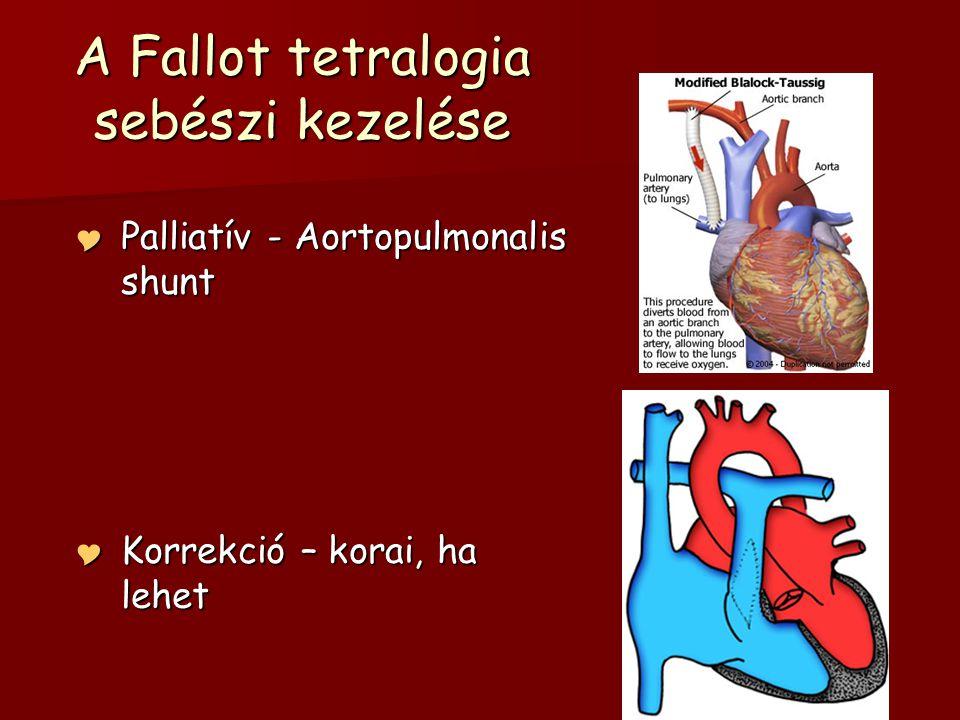A Fallot tetralogia sebészi kezelése  Palliatív - Aortopulmonalis shunt  Korrekció – korai, ha lehet