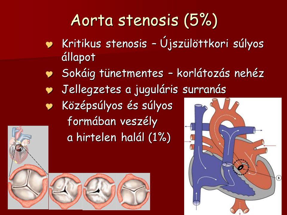 Aorta stenosis (5%)  Kritikus stenosis – Újszülöttkori súlyos állapot  Sokáig tünetmentes – korlátozás nehéz  Jellegzetes a juguláris surranás  Kö