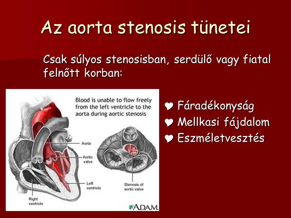 Az aorta stenosis terápiája  Ballon dylatatio – csak válogatott esetekben, mert insuff.