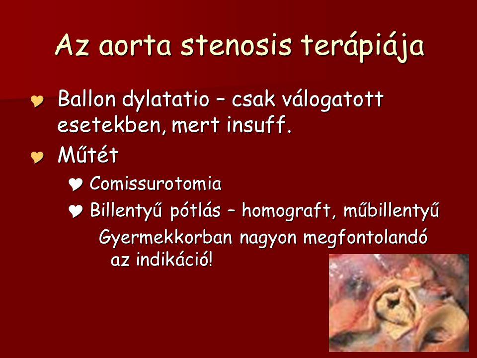 Az aorta stenosis terápiája  Ballon dylatatio – csak válogatott esetekben, mert insuff.  Műtét  Comissurotomia  Billentyű pótlás – homograft, műbi