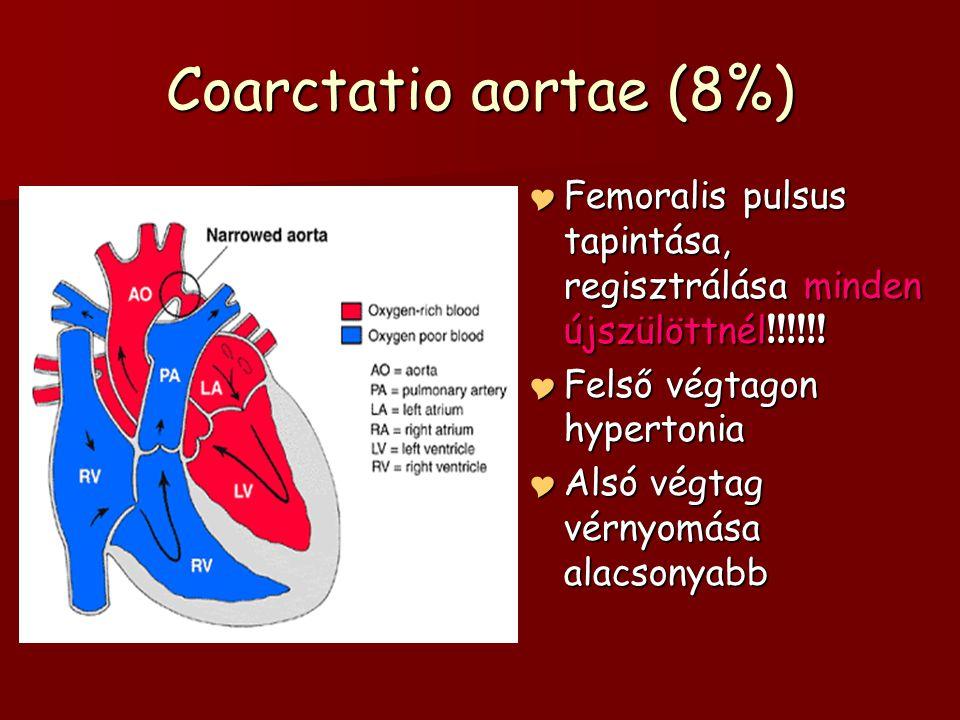 Coarctatio aortae (8%)  Femoralis pulsus tapintása, regisztrálása minden újszülöttnél !!!!!!  Felső végtagon hypertonia  Alsó végtag vérnyomása ala